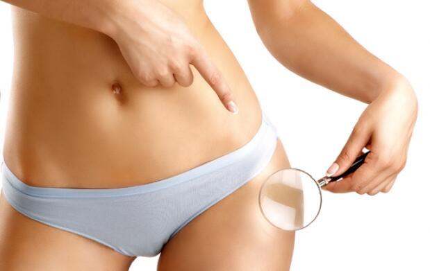 Lipo sin cirugía: hidrolipoclasia ultrasónica asistida