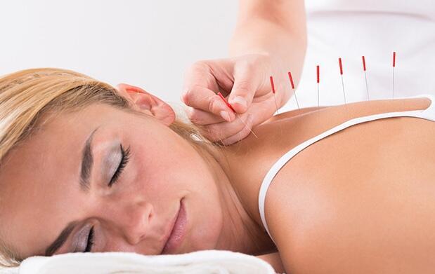 1, 3 o 6 sesiones de acupuntura