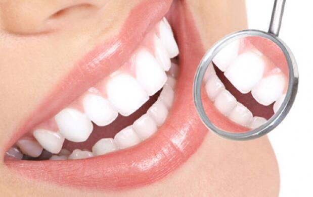 Limpieza dental + blanqueamiento