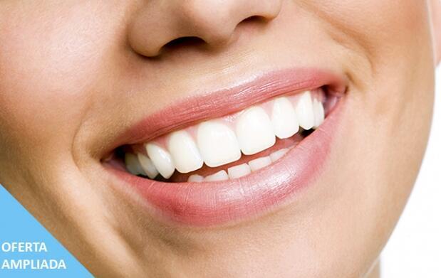 Blanqueamiento dental ¡Luce sonrisa!